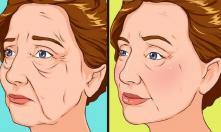Các cách hiệu quả để thoát khỏi tình trạng da mặt và da cổ chảy xệ
